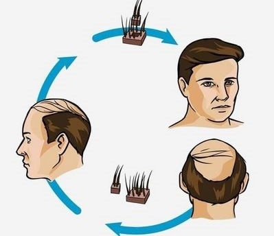 Hair Transplantation: What Should You Expect?