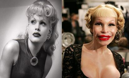 Amanda Lepore Cosmetic Surgery Results