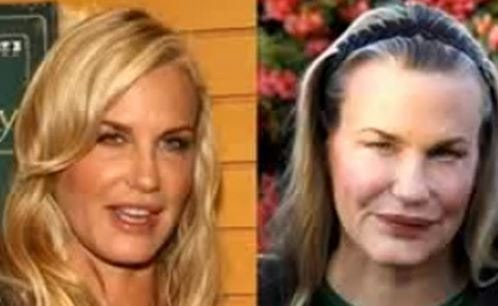 Daryl Hannah Before After Plastic Surgery
