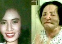 Hang Mioku Cosmetic Surgery Nightmare