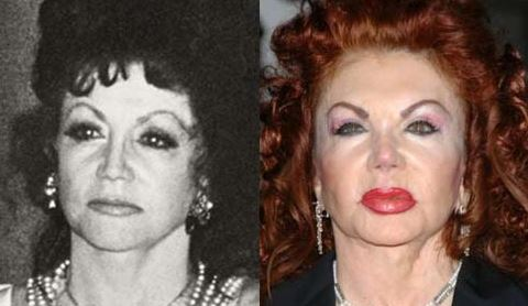 Jackie Stallone Before After
