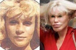 Jocelyn Wildenstein Botched plastic surgery