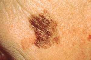 Melanoma And Wrinkles