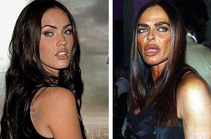Michaela Romanini Bad Plastic Surgery
