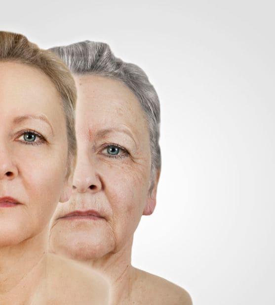 Skin Rejuvenation Before After