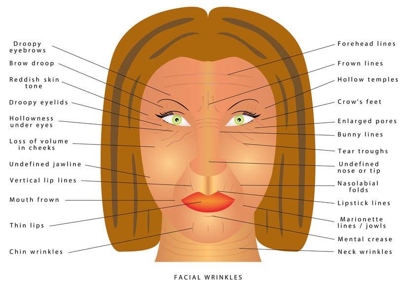 Wrinkles Types