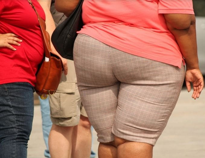 Obesity Definition Causes And Pathophysiology Gilmore Health News