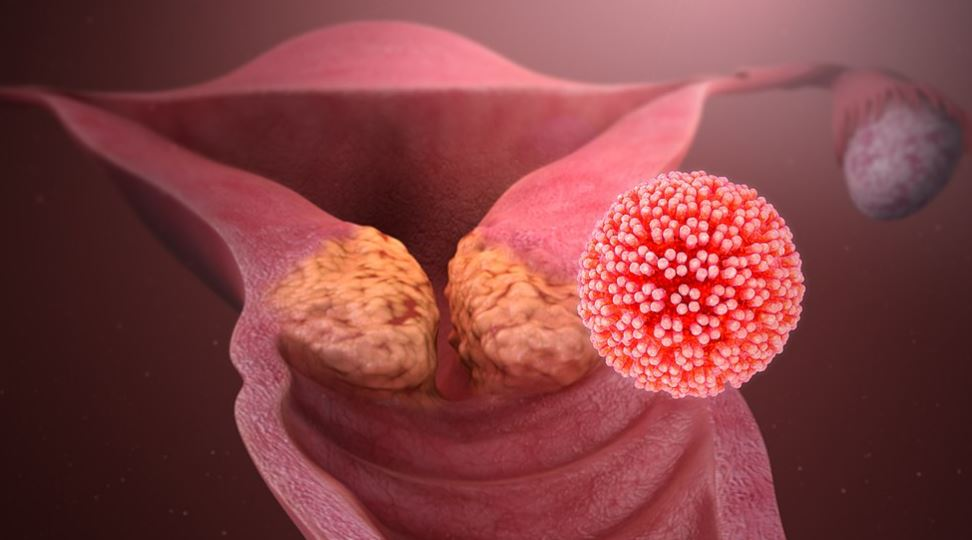 HPV Cervical Infection