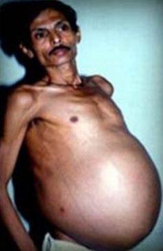 Pregnant Man Sanju Bhagat