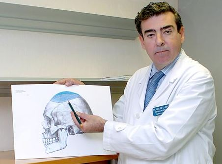 Dr de la Cruz Silicone Head Implant