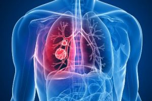 Lung Cancer in Non Smokers