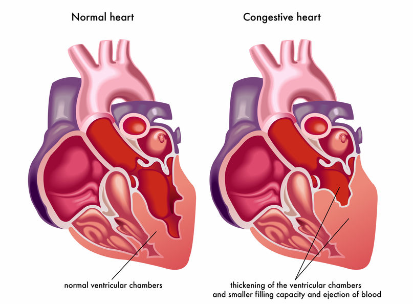 The Possibility of Treating Heart Failure With Erectile Dysfunction Drug