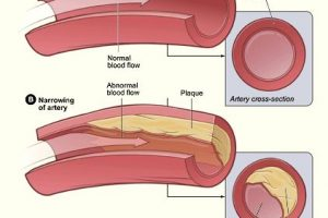 A Normal Artery Compared To A Narrowing One