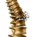 Osteoporosis Spine
