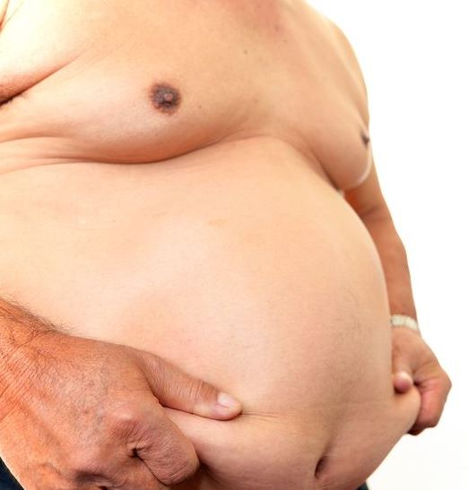 Man with Hypogonadism