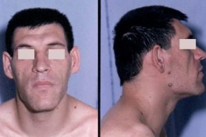 Man With Acromegaly
