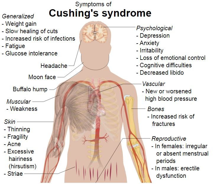 Cushing's syndrome