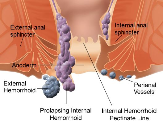 Hemorrhoids Latest Facts Symptoms Diagnosis And Treatment Gilmore Health News